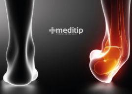 Qué es un esguince: causas, grados de lesión y tratamiento