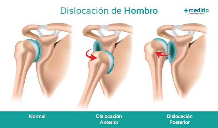 Ilustración de dislocación de hombro: tipos de dislocación