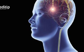 Tratamiento de la epilepsia: estimulación del nervio vago