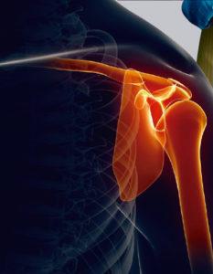 Remedios para el dolor de huesos y articulaciones: alimentación para fortalecer los huesos y las articulaciones