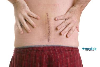 Paciente con cirugía de fusión lumbar