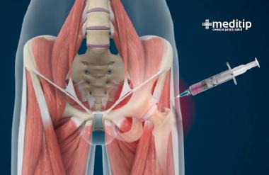 Infiltración intraarticular en la cadera para el tratamiento de osteoartritis