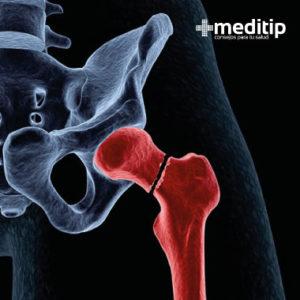 La fractura de la cadera es una de las más comunes en el adulto mayor