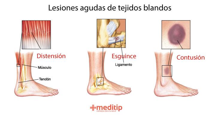 Lesiones agudas de tejidos blandos: distensión, contusión y esguince