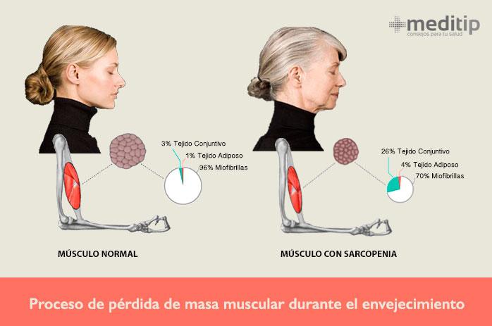 Pérdida de músculo: sarcopenia, cambios y deterioro en las fibras musculares