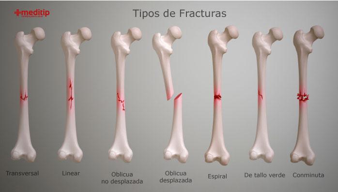 Tipos de fracturas: las Lesiones de huesos en el adulto mayor más comunes son las fracturas