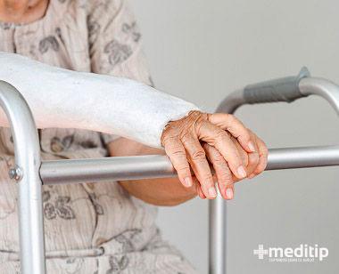 Yesos y férulas, procedimientos comunes para tratar lesiones de huesos en el adulto mayor