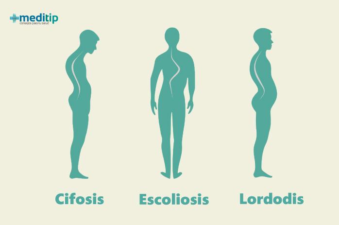 Ilustración de hipercifosis, escoliosis e hiperlordosis