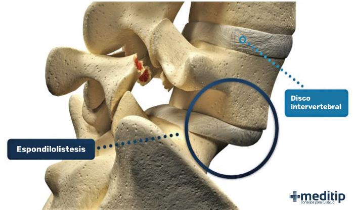 Fractura y deslizamiento de una vértebra: espondilolistesis