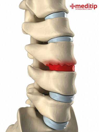 Disco vertebral degenerado: causas más recurrentes del dolor de espalda