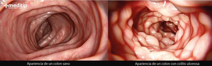Imágenes de colonoscopía a un colon sano y un colon irritado
