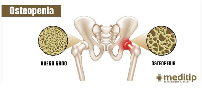 Enfermedades de los huesos en adultos mayores: Osteopenia, pérdida de masa muscular