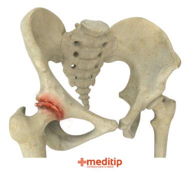 Daño en la cadera debido a osteoartritis: función de la cirugía de reemplazo de cadera