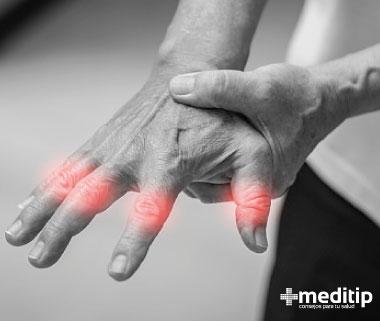 Rigidez de articulaciones en los nudillos de las manos