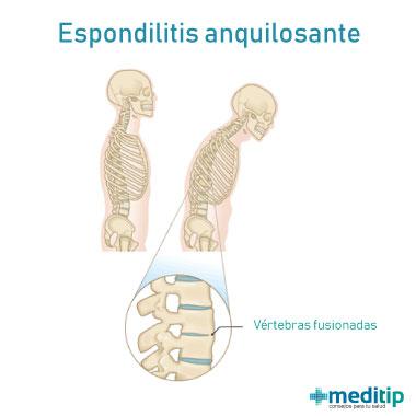 Ilustración de Espondilitis anquilosante