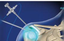 Beneficios de la artroscopia: cirugía artroscópica de hombro