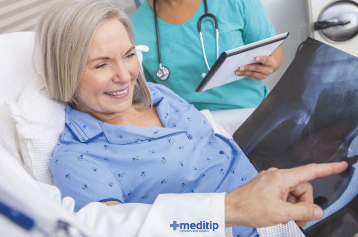 paciente y médico revisando el reemplazo de cadera