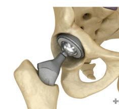 Reemplazo total de cadera o prótesis de cadera: en qué consiste la operación