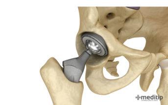 En qué consiste la cirugía de reemplazo total de cadera