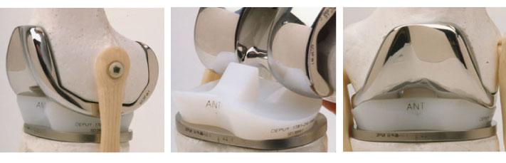 Vistas de una prótesis de rodilla: durabilidad, beneficios de una prótesis ortopédica