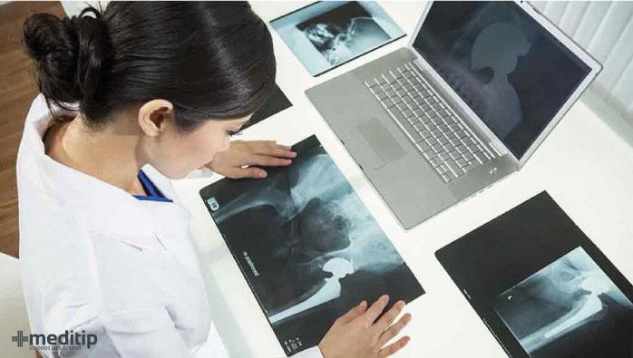 radiografías de reemplazo de cadera