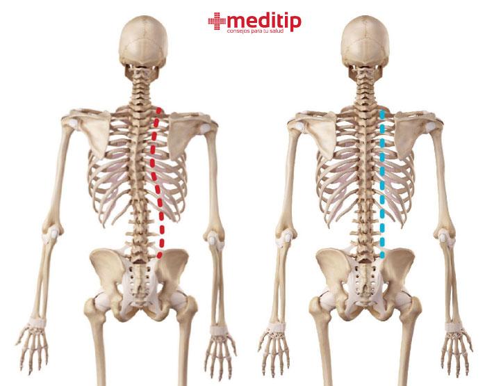 Ilustración de columna normal y columna con escoliosis