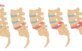 Proceso y grados de deslizamiento de una vértebra