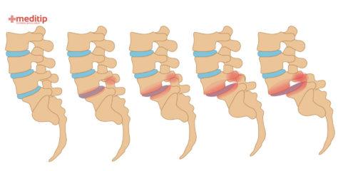 Qué es la espondilolistesis: síntomas, tipos y tratamiento