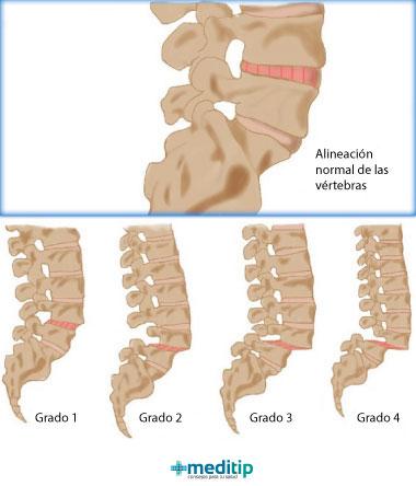 Deslizamiento de una vértebra: grados de espondilolistesis