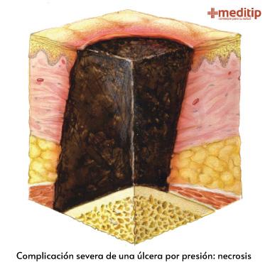 Complicaciones de las úlceras por presión: tejido necrótico que requiere desbridamiento