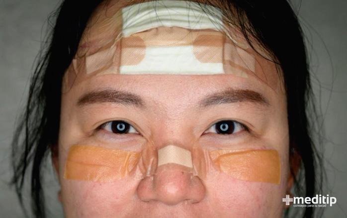 Persona con apósitos para protección: cómo evitar heridas por el uso de equipo de protección personal