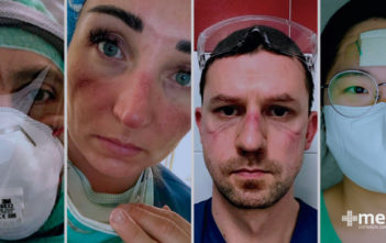 Heridas por uso de equipo de protección sanitaria: Lesiones faciales en profesionales de la salud