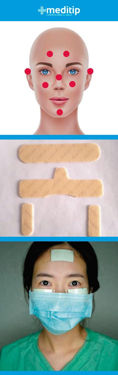 Uso de apósitos: heridas por uso de equipo de protección sanitaria