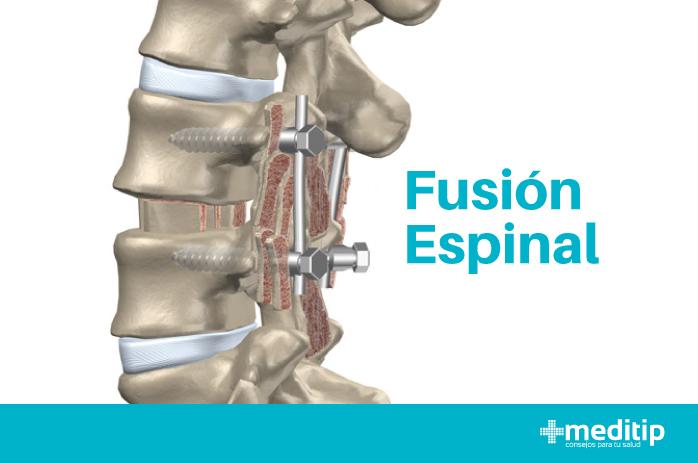 Qué es una fusión espinal: ilustración