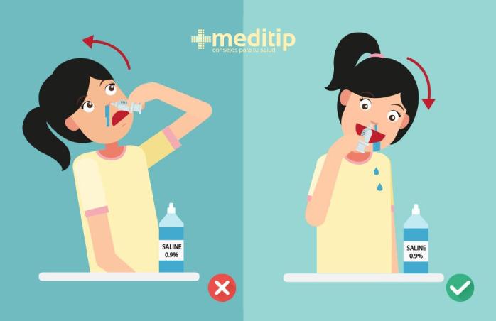 Instrucciones para el lavado nasal con solución salina: tratamiento de la rinosinusitis aguda y crónica