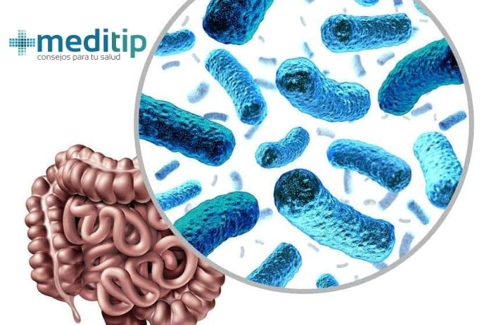Bacterias en el intestino delgado, causas: Meditip