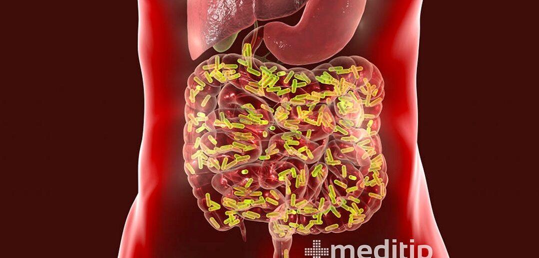SIBO: sobrecrecimiento de bacterias en el intestino delgado